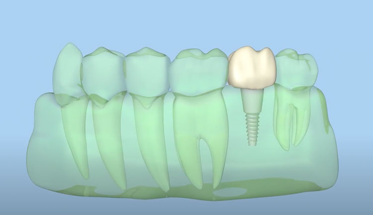 dental implants for missing teeth chugach dental anchorage alaska