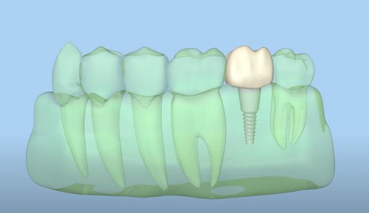 dental implants for missing teeth chugach dental anchorage alaska